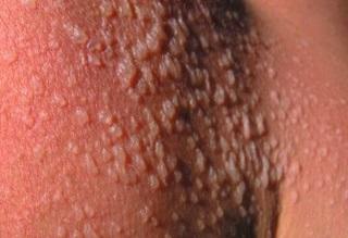 Phlyctènes (cloques) sur un coup de soleil du 2ème degré.